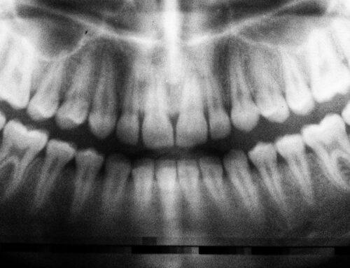 Come rimuovere i denti del giudizio prima che si formino